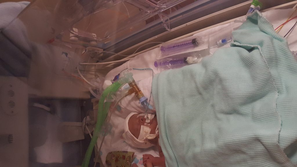 My premature baby in his incubator