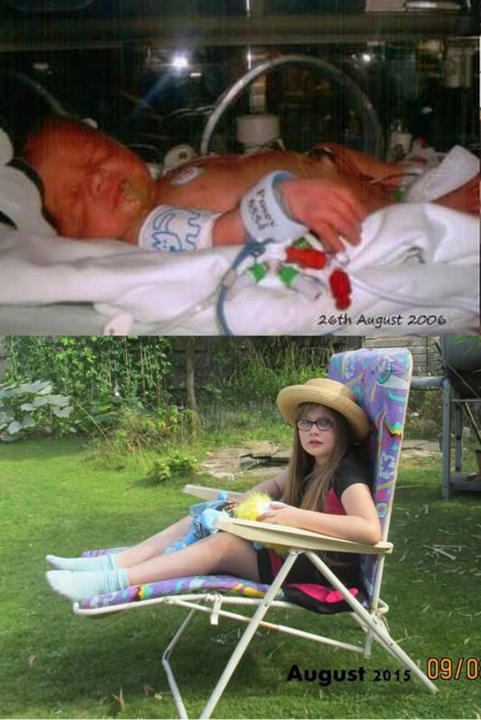 NICU to now. Photograph of a premature baby girl in her incubator and a photograph of her aged 9.