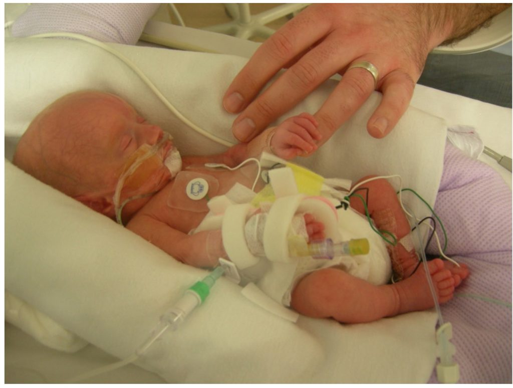 Alfie about 1 month old in his incubator holding Jo's finger