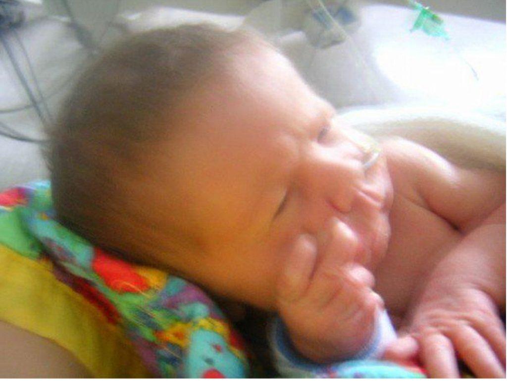 Premature baby Alice