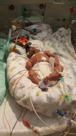 Causes of babies being born prematurely