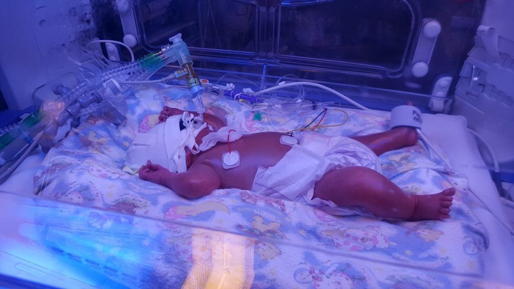 Premature baby with Hydrops fetalis